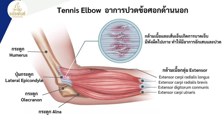 อาการปวดข้อศอกด้านนอก