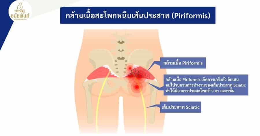 กล้ามเนื้อสะโพกหนีบเส้นประสาท (Piriformis)