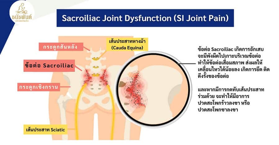 Sacroiliac Joint Dysfunction หรือ SI Joint Pain